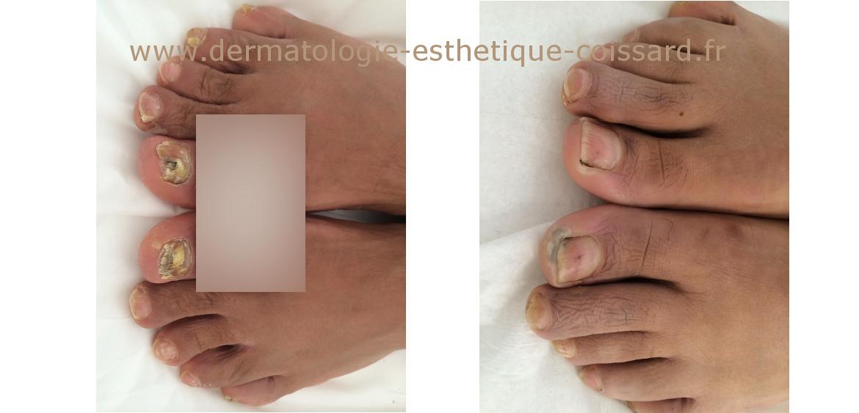 Traitement mycose ongle pied efficace 100 naturel - Cloque du pecher traitement naturel ...