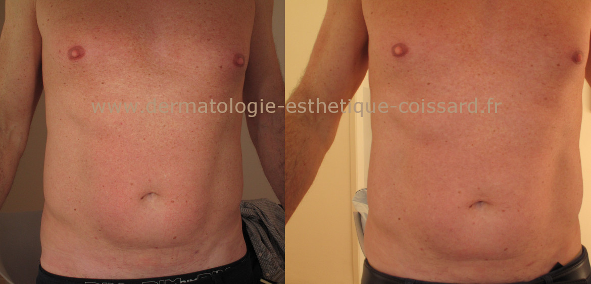cryolipolysis-nice