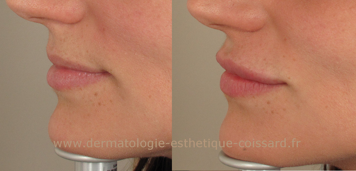 Hyaluronic-acid-injection-lips-beausoleil