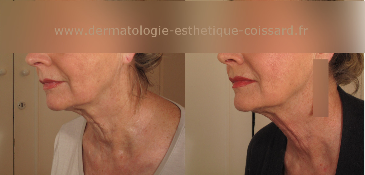 Fractional-laser-beaulieu