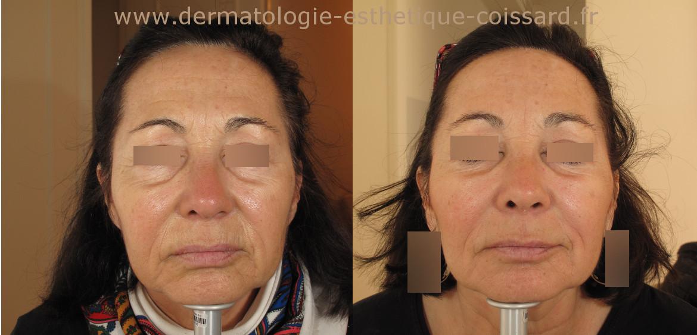 le docteur coissard dermatologue beaulie prend en charge le rajeunissement du visage en. Black Bedroom Furniture Sets. Home Design Ideas
