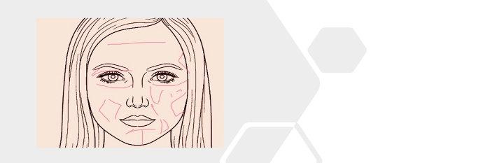 visage-botox-acide-hyaluronique